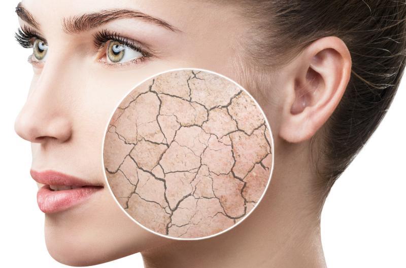 Trockene Haut kann verschiedene Ursachen haben