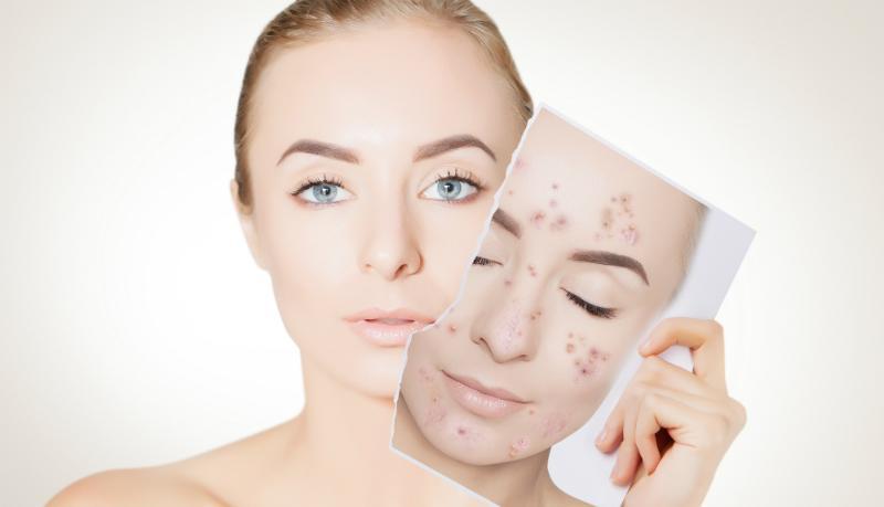 Frau mit unreiner Haut