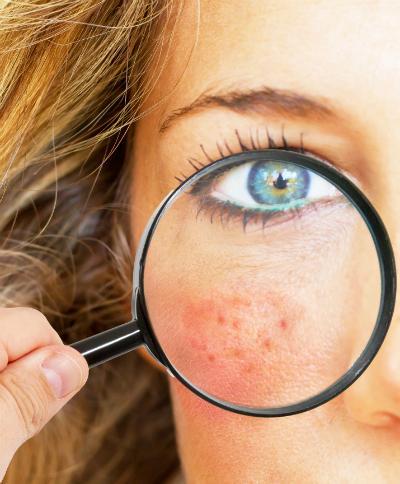 Was sind die Ursachen von unreiner Haut?