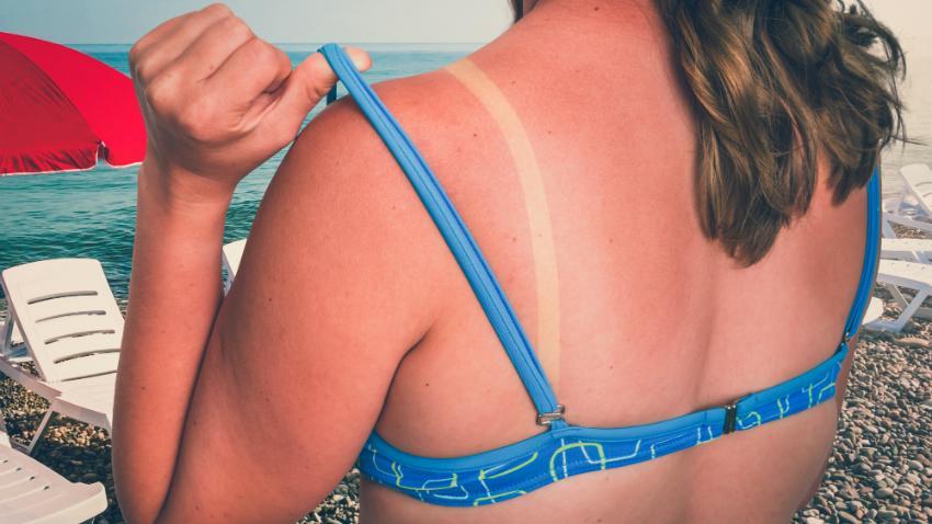 Schädlicher Sonnenbrand