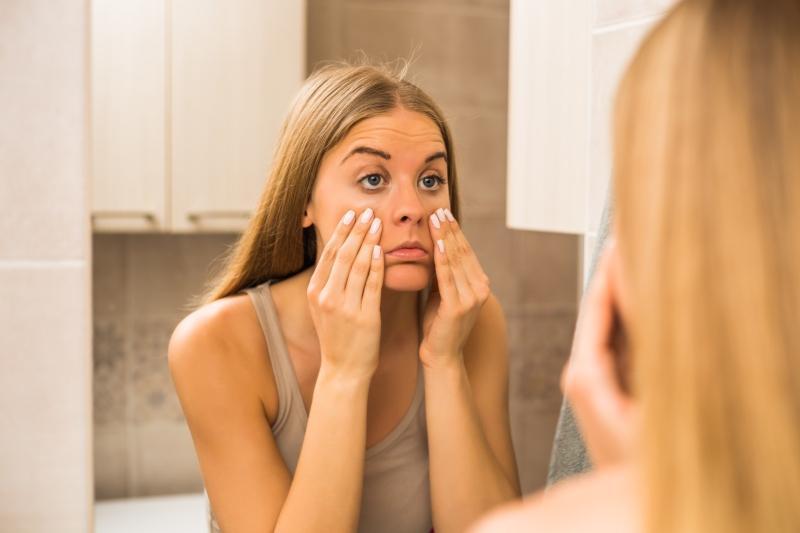 Ursachen fuer Augenringe