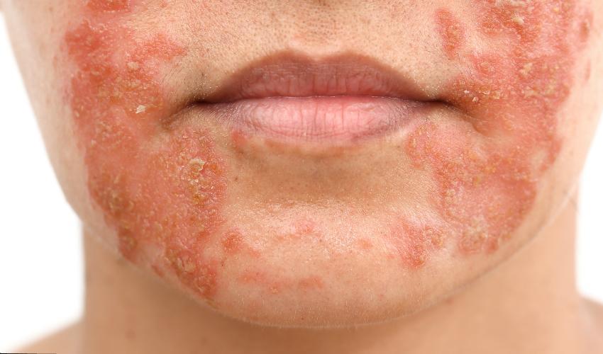 Wunde Haut um die Mundwinkel herum