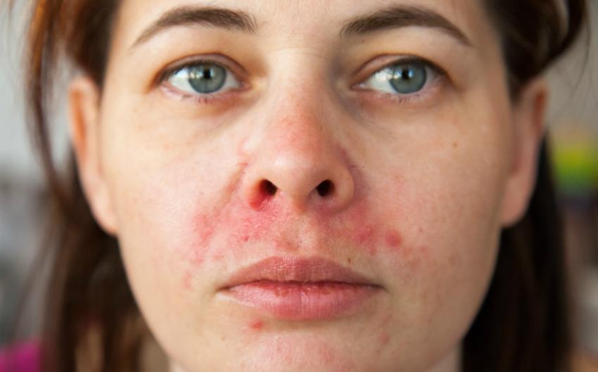 Periorale Dermatitis