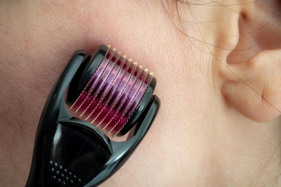 mesotherapie-dermaroller-microneedling