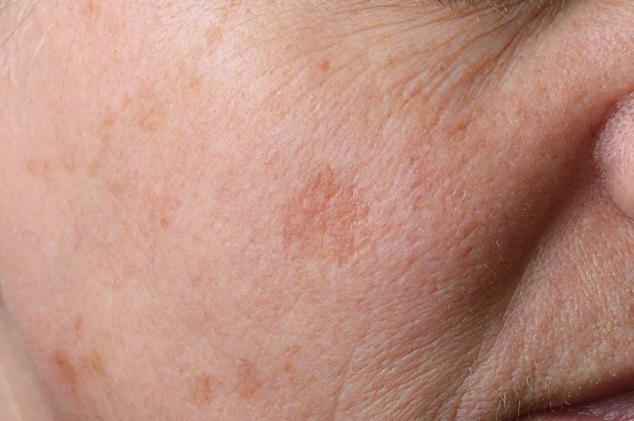 Altersflecken im Gesicht pigmentflecken-und-hyperpigmentierung