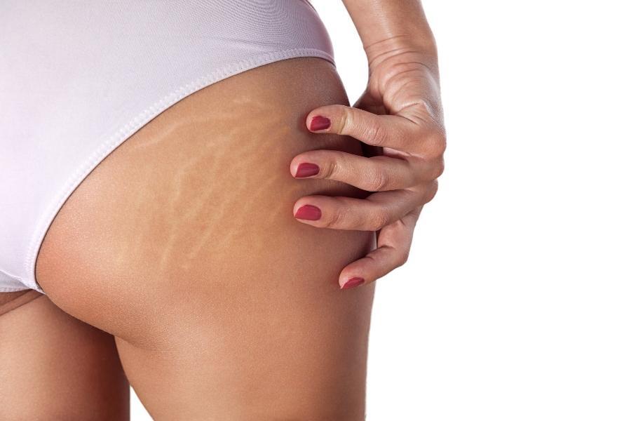 Dehnungsstreifen-Narbenpflege