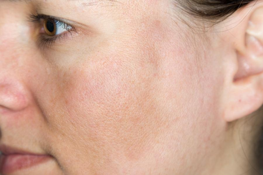 Junge Frau mit Pigmentflecken auf den Wangen pigmentflecken-und-hyperpigmentierung