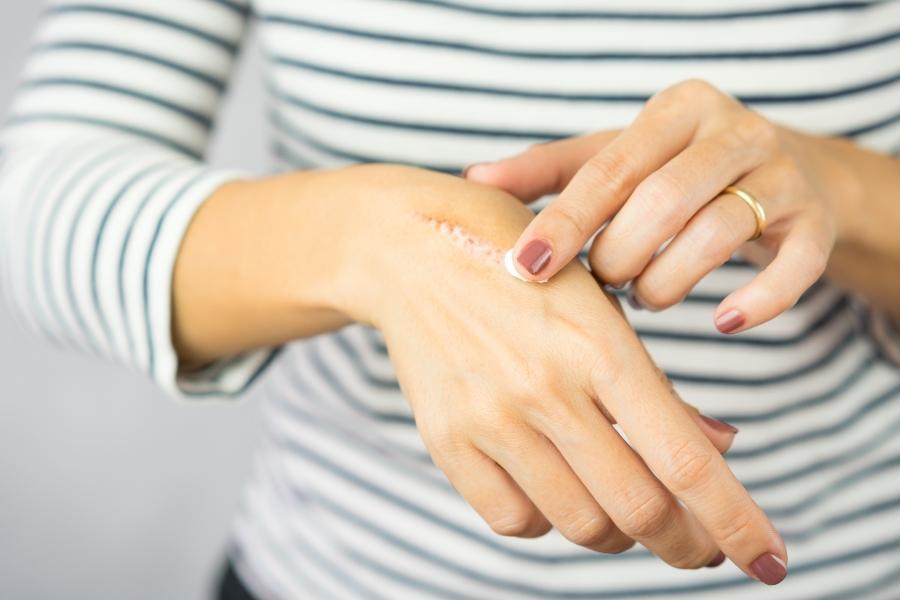 narbenpflege-hand