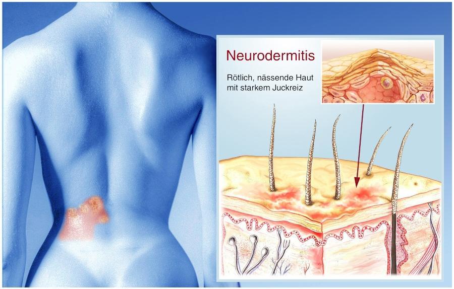 neurodermitis-haut-juckreiz